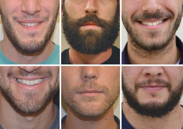 Resultado de imagem para implante barba